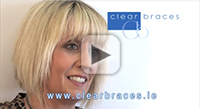 Invisalign Video Testimonial | Sharon